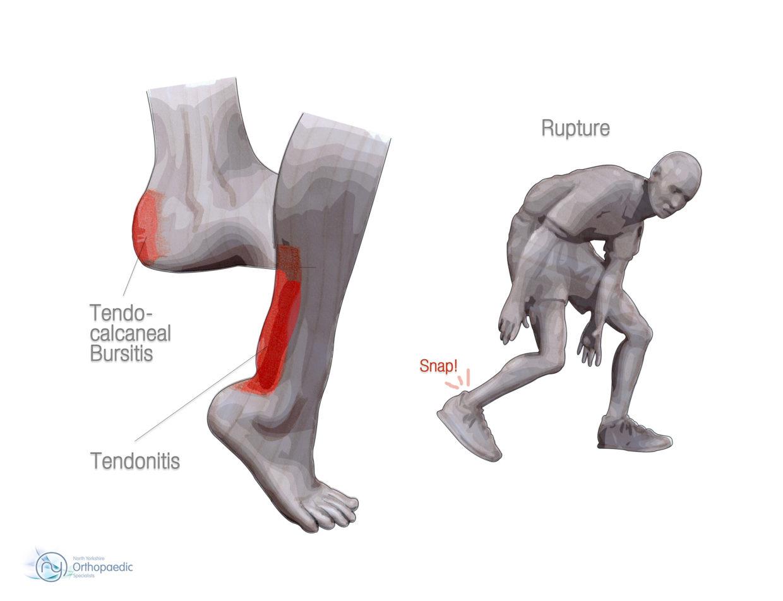 Achilles Tendon spclinic osteopatia lesao acupuntura lisboa