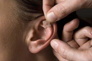 Tabagismo pare de fumar sp.clinic.medicina.chinesa.lisboa.auriculoterapia.tratamento.orelha